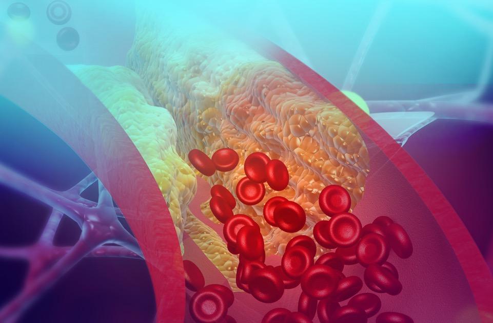 erhoehtes-cholesterin-cholesterinspiegel